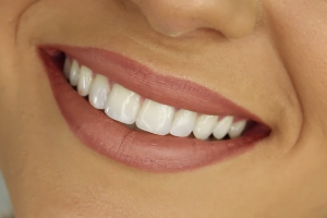 Healthy Smiling Teeth